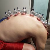Academy Athletic Therapy Inc., Winnipeg, MB, cupping massage