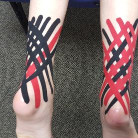 Neuro-proprioceptive tape, Neuro-proprioceptive taping, Academy Athletic Therapy Inc., Winnipeg, Manitoba, ktape, taping